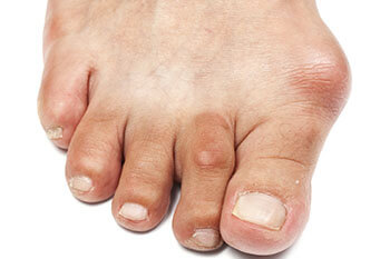 Bunions treatment in Chicago, IL 60613 and Wheeling, IL 60090