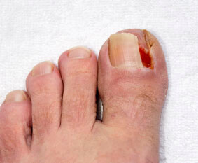ingrown toenail in the Wheeling, IL 60090 and Chicago, IL 60613 area