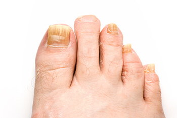 toenail fungus treatment in the Wheeling, IL 60090 and Chicago, IL 60613 area