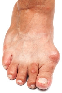 How Do Bunions Develop?