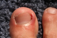 Possible Causes of Ingrown Toenails