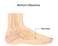 Everything You Should Know About Morton's Neuroma